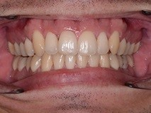 Invisalign Manchester - After pic 2