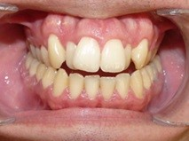 Invisalign Manchester - Before pic 2