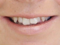 Invisalign Manchester - Before 1