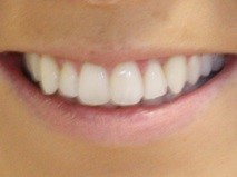 Invisalign Manchester - After pic 1